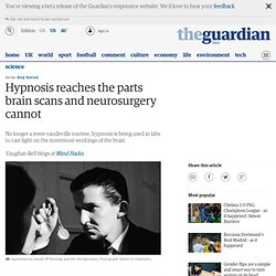 Hypnosis reaches the parts brain scans and neurosurgery cannot