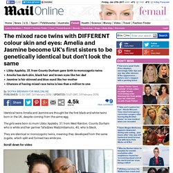 First identical twins with different skin colour born in the UK