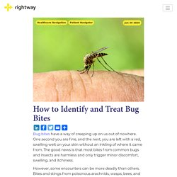 How to Identify and Treat Bug Bites