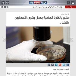 صحة - علاج بالخلايا الجذعية يحمل بشرى للمصابين بالشلل