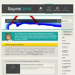 Imagerie médicale - Rayons Santé