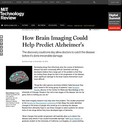 How Brain Imaging Could Help Predict Alzheimer's