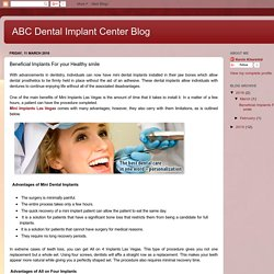 ABC Dental Implant Center Blog: Beneficial Implants For your Healthy smile