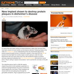 New implant shown to destroy protein plaques in Alzheimer's disease