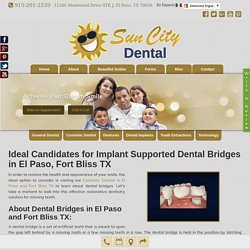 Implant Supported Dental Bridges El Paso, Fort Bliss TX - Dr. Gonzalez