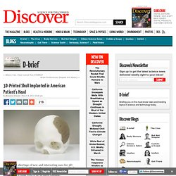 3D-Printed Skull Implanted in American Patient's Head : D-brief