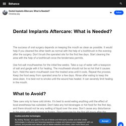 Dental Implants Aftercare: What is Needed? on Behance
