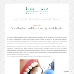 Dental Implants and their Amazing Health Benefits – Cosmetic Invisalign Dentist & Dental Care Surgery in Leeds