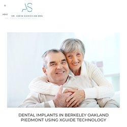 Dental Implants In Berkeley Oakland Piedmont Using XGuide Technology