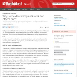 Why some dental implants work and others don't