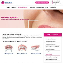 Dental Implants In Hyderabad, Banjara Hills