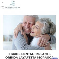 XGuide Dental Implants Orinda Layafetta Moranga (Lamorinda)