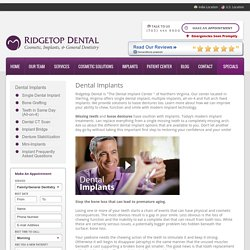 Dental Implants Northern Virginia