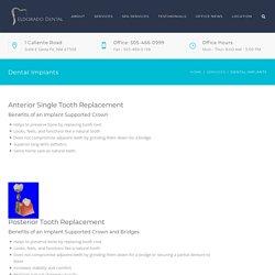 Dental Implants Santa Fe