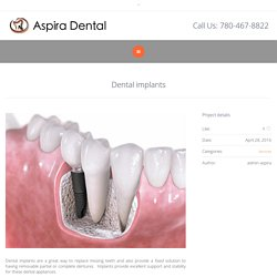 Dental Implant Services In Sherwood Park, AB