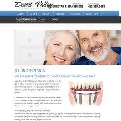 All on 4 Implants - Desert Valley Oral SurgeryDesert Valley Oral Surgery