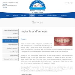 Dental Implants Veneers Appleton Fox Valley Green Bay Neenah