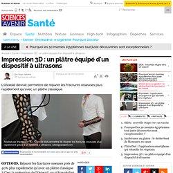 Impression 3D : un plâtre équipé d'un dispositif à ultrasons