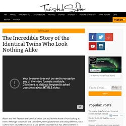 The Incredible Story of the Identical Twins Who Look Nothing Alike