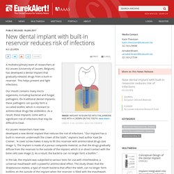 New dental implant with built-in reservoir reduces risk of infections