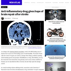 Anti-inflammatory drug gives hope of brain repair after stroke