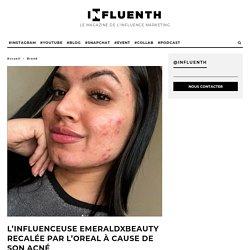 L'influenceuse EmeraldXBeauty recalée par L'Oreal à cause de son acné