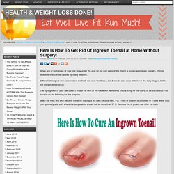 Here Is How To Get Rid Of Ingrown Toenail at Home Without Surgery!