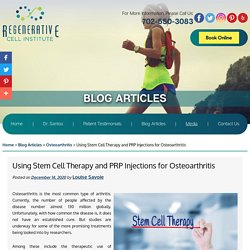 Using Stem Cell Therapy and PRP Injections for Osteoarthritis