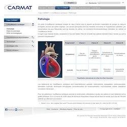 L'insuffisance cardiaque - Pathologie