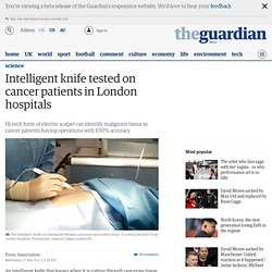 Intelligent knife tested on cancer patients in London hospitals
