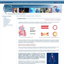 Pontage coronaire - Interventions - Nos domaines d'expertise - Chirurgie cardiaque - Brussels Heart Center (BHC) - Cardiologie et chirurgie cardiaque à Bruxelles et Ottignies