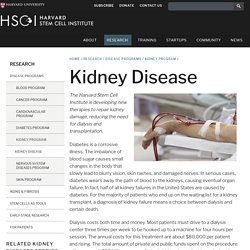 The kidney repair shop | Harvard Stem Cell Institute