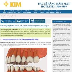 Làm răng Implant ở đâu tốt AN TOÀN cần đáp ứng những tiêu chí gì ?