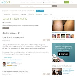 Laser Stretch Marks - Does It Work? Expert Answers