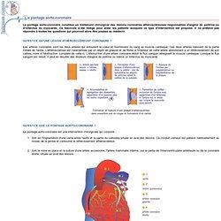 Le pontage aorto-coronaire