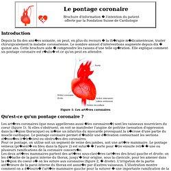 Le pontage coronaire