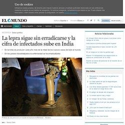 La lepra sigue sin erradicarse y la cifra de infectados sube en India