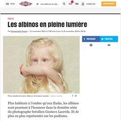 Les albinos en pleine lumière