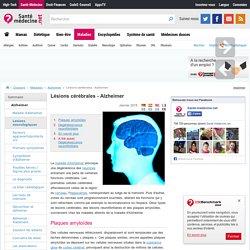 Lésions cérébrales - Alzheimer