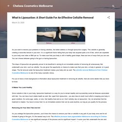 What Is Liposuction: A Short Guide For An Effective Cellulite Removal