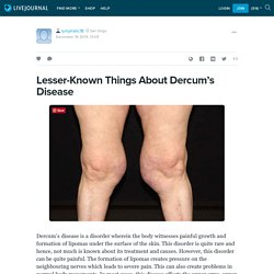 Lesser-Known Things About Dercum's Disease - Lymphatic Therapy Services