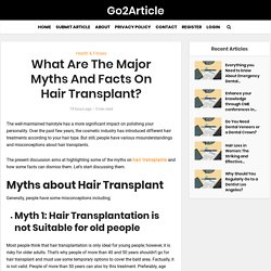 What Are The Major Myths And Facts On Hair Transplant?