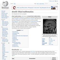 Arnold–Chiari malformation