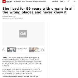 Rose Marie Bentley lived for 99 years with organs in all the wrong places and never knew it - CNN