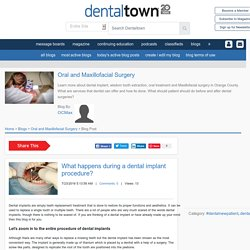 What happens during a dental implant procedure?