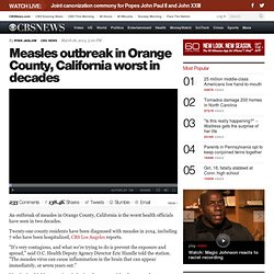 Measles outbreak in Orange County, California worst in decades