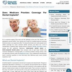 Does Medicare Provides Coverage For Dental Implants?