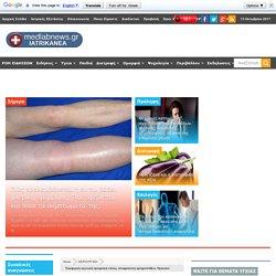 Περιφερική αγγειακή αρτηριακή νόσος, αποφρακτική αρτηριοπάθεια. Προκαλεί χωλότητα, πόνο, κράμπες, μούδιασμα στα πόδια, πληγές - MEDLABNEWS.GR / IATRIKA NEA