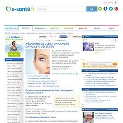 Mélanome de l'œil, mélanome uvéal : un cancer difficile à détecter, les symptômes du mélanome de l'œil, e-sante.fr