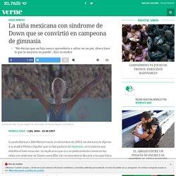 La niña mexicana con síndrome de Down que se convirtió en campeona de gimnasia